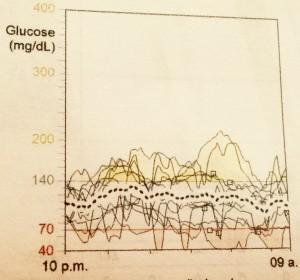 Sobreposición de 2 semanas de monitoreo continuo de glucosa durante la noche.